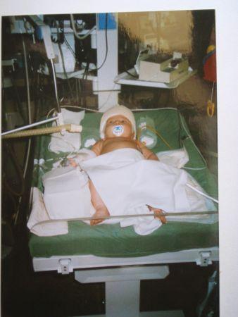 Po operaci byl Ondra převezen na ARO
